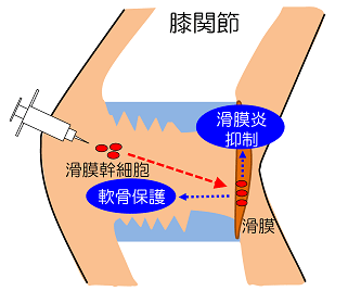注射 関節 性 症 変形 膝