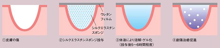 図3.シルクエラスチンスポンジを用いた傷の治療