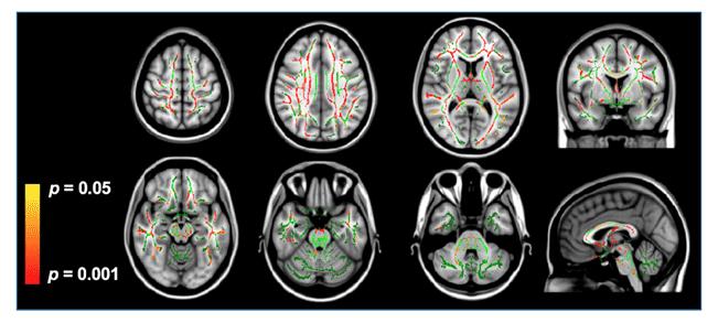 図1:MRI拡散テンソル画像における異方性比率の変化