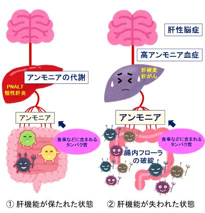 図2 肝性脳症