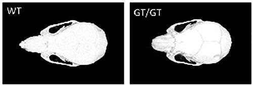 図2 ジーントラップ法で作成されたWWP2欠損マウス(WWP2GT/GT)の頭蓋骨のマイクロCT像