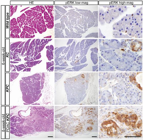 Fig. 1 遺伝子変異を持ったマウスの膵臓の組織染色