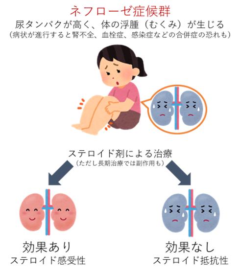 図1.ネフローゼ症候群のステロイド剤の効果による分類