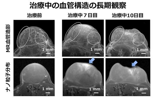 図4 治療中のがんの血管構造の変化とナノ粒子の分布