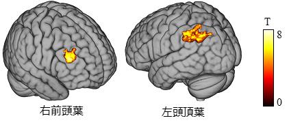 図4 fMRIで計測した脳活動データ