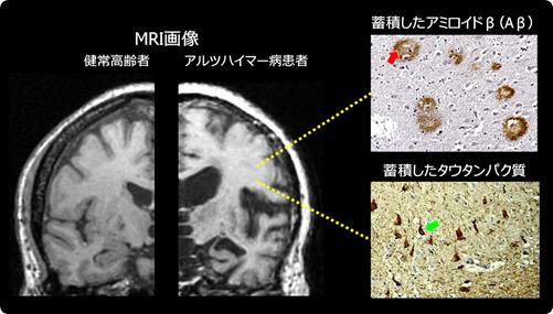 図1 アルツハイマー病における脳の変化