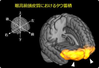 図2 意欲低下が強いアルツハイマー病患者におけるタウ蓄積