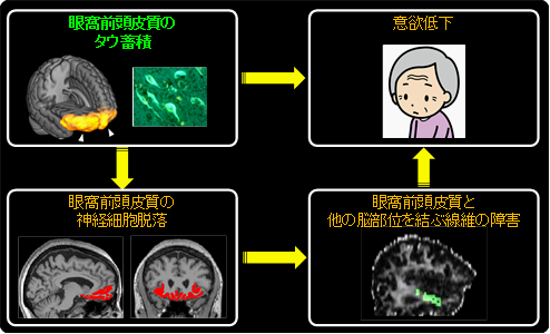 図3 アルツハイマー病におけるタウ蓄積ならびに神経障害と意欲低下の関連
