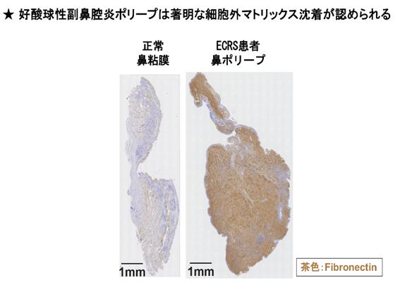 図4 好酸球性副鼻腔炎患者由来のポリープの免疫組織染色解析