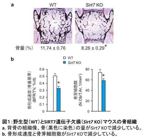 図1:野生型(WT)とSIRT7(Sirt7 KO)マウスの骨組織