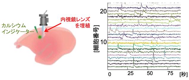 図1. 小型蛍光顕微鏡による運動野のカルシウムイメージング