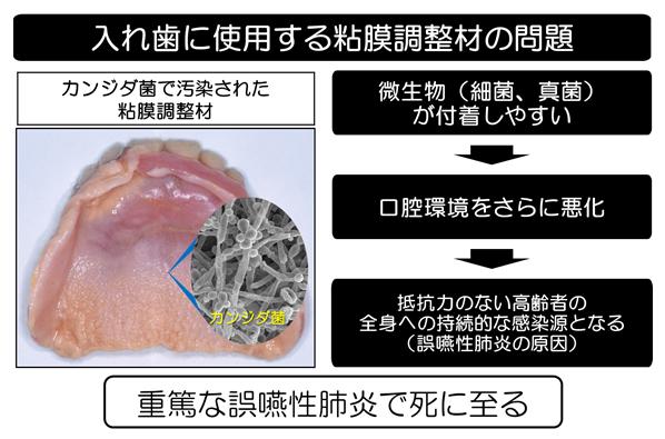 画像_カンジダ菌で汚染された粘膜調整剤