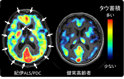 図1 代表的な紀伊ALS/PDC患者におけるタウ蓄積