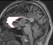 前部帯状回の画像