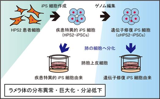 iPS細胞を用いて遺伝性間質性肺炎の病態解析に成功―間質性肺炎の原因 ...