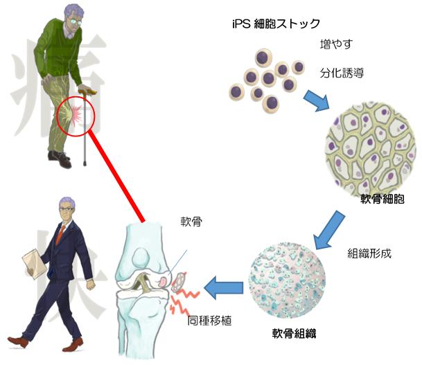 9.同種iPS細胞由来軟骨移植までの流れのイメージ(詳細は本文中に記載)