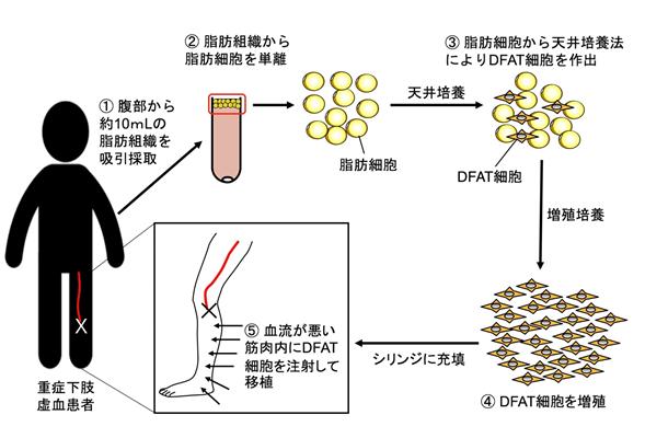 患者自身の脂肪細胞から作られる「DFAT細胞」を用いて世界初の血管再生医療の臨床研究を開始 成果イメージ図 内容は本文中に記載
